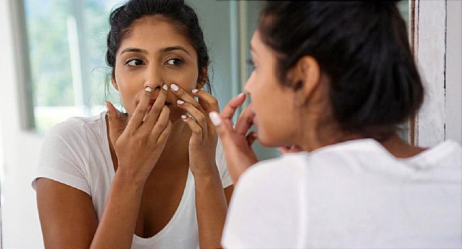 teen acne treatment